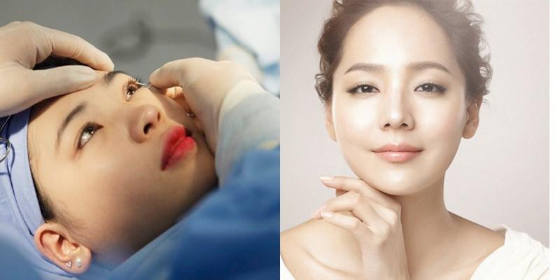Bạn đã biết bác sĩ nào cắt mí mắt đẹp chưa? 2