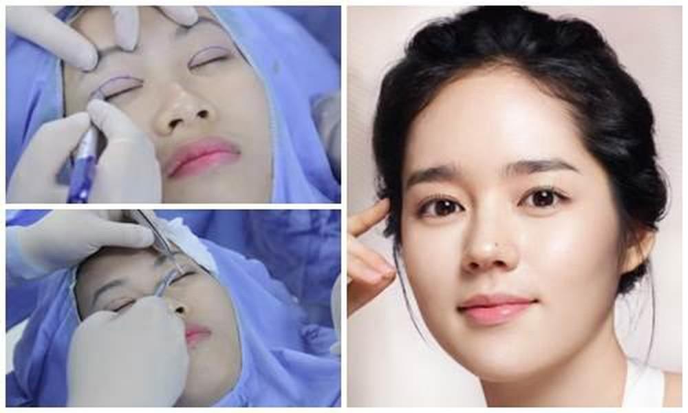 Cắt mí mắt bị sưng phải làm sao? Giải đáp từ chuyên gia 1
