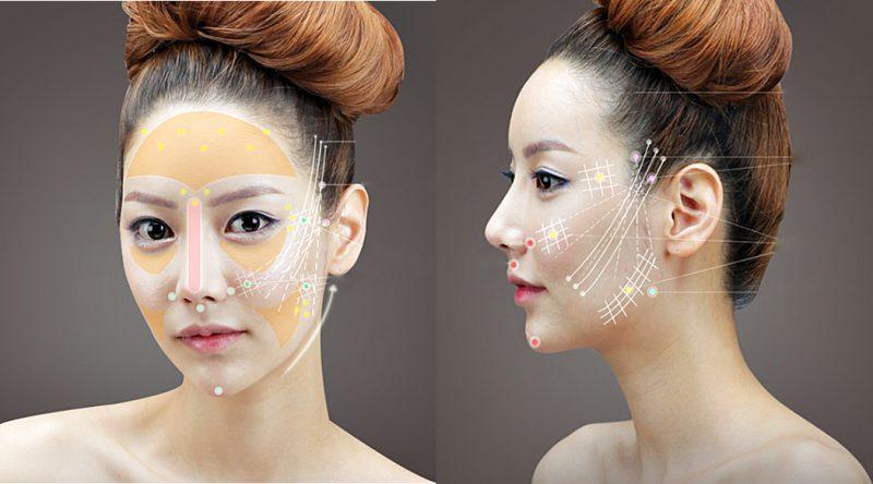Căng da mặt bằng chỉ vàng có tốt không? 2