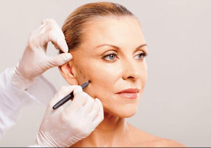 Căng da mặt nội soi ở đâu dịch vụ uy tín, giá tốt?2