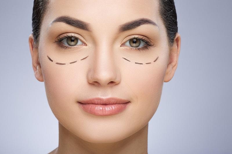 Cắt mí mắt có ảnh hưởng gì không?