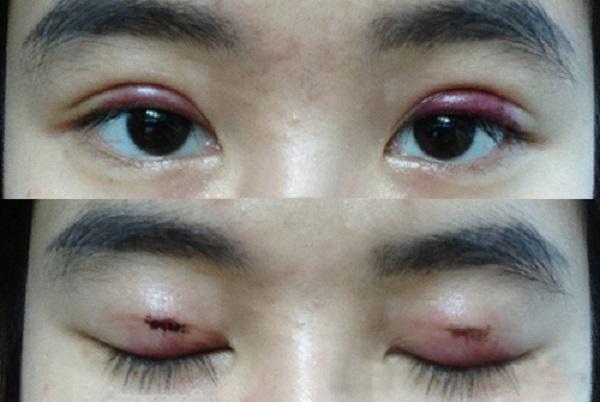 Mắt bị thâm sau cắt mí